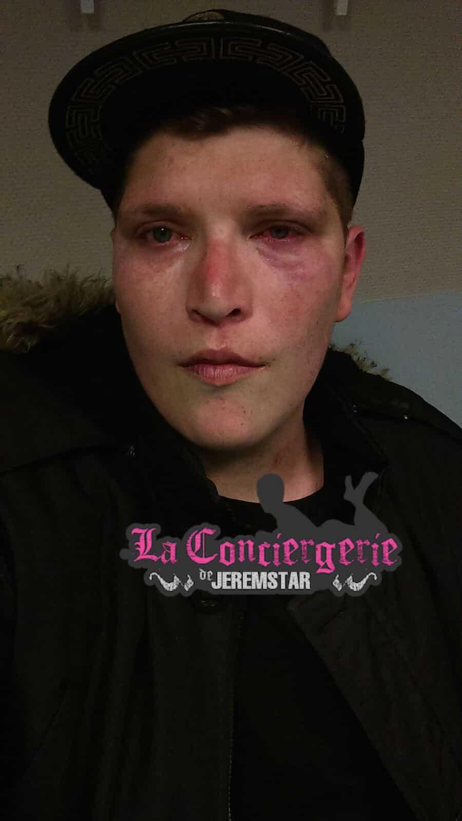 Michael agressé samedi soir
