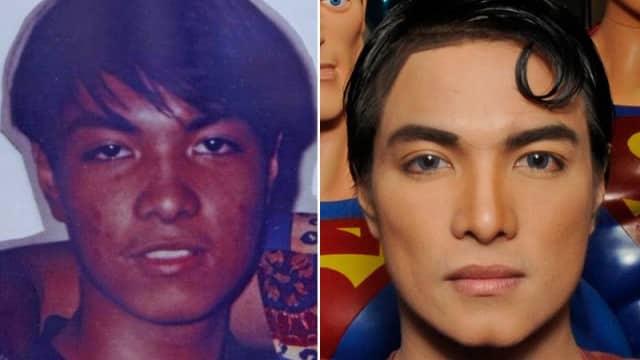 Il subit 23 opérations de chirurgie esthétique pour ressembler à Superman, c'est raté !