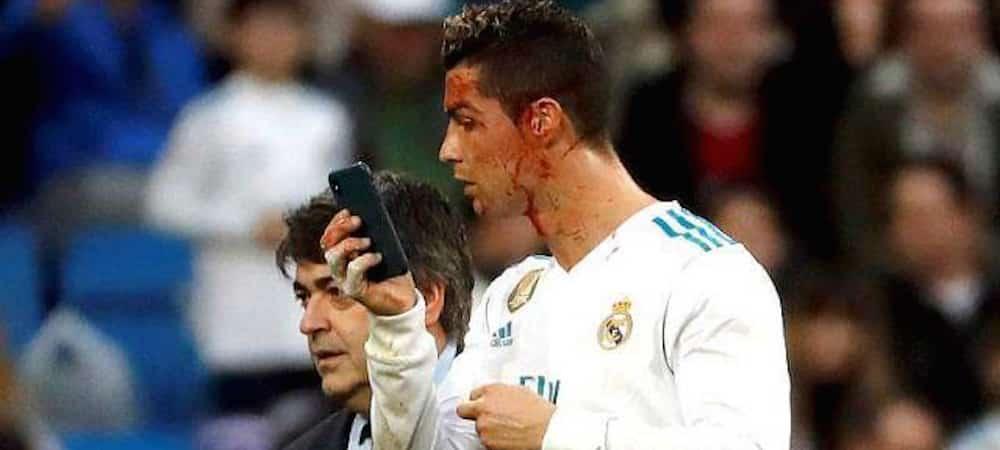 Cristiano Ronaldo: visage en sang il demande un téléphone pour voir sa blessure !
