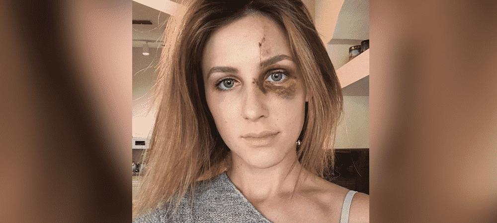 Instagram : une étudiante battue par son conjoint poursuivie en justice