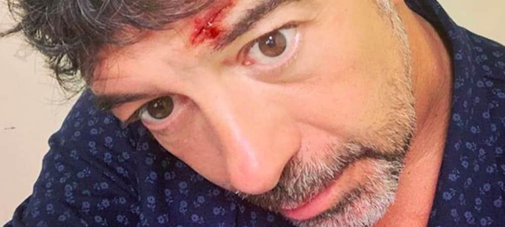 Stéphane Plaza le crâne ouvert: que s'est-il passé ? (PHOTO)