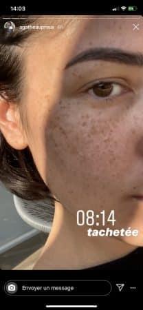 Agathe Auproux s'affiche couverte de tâches de rousseur sur Instagram 640