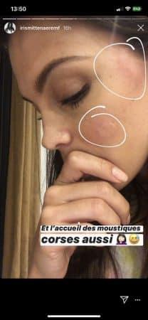 Iris Mittenaere défigurée par d'énormes piqûres de moustiques 640