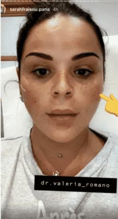 Sarah Fraisou clashée par Inès Lee à cause de ses injections aux lèvres 17062020-