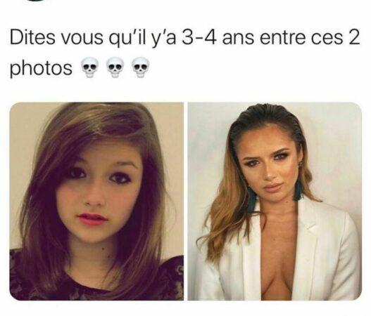 Victoria Méhault (Les Marseillais) métamorphosée par la chirurgie esthétique !