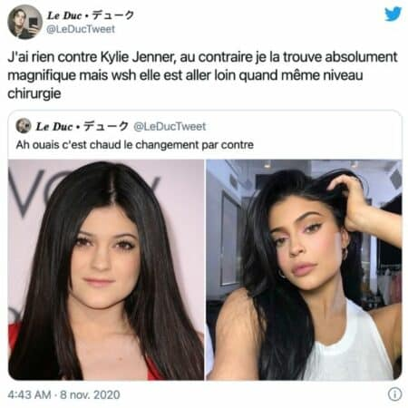 Kylie Jenner: ses fans choqués par sa transformation physique !