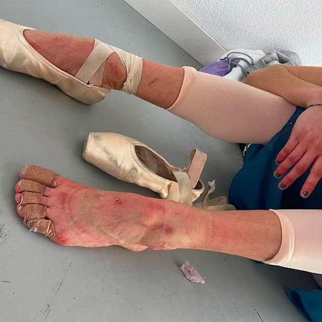 Maria Pedraza (La Casa de Papel): ses pieds bousillés par la danse !